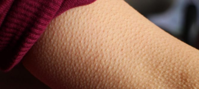 If music gives you goosebumps, your brain might be special
